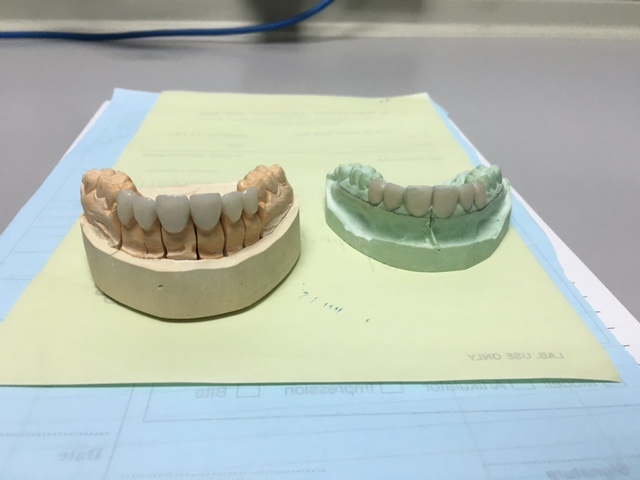 On the right are the porcelain veneers , on the left are the mockups.